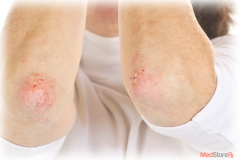 Can death occur from Psoriasis
