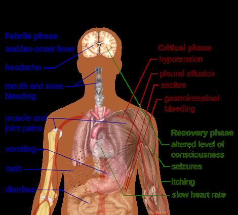 Dengue_fever_symptoms