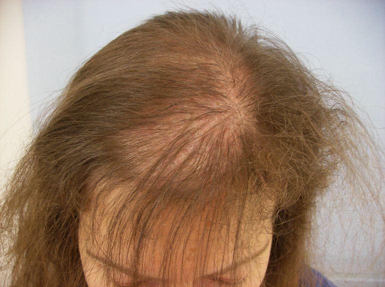 Hair Diseases