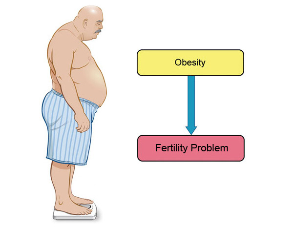 Obesity and infertility