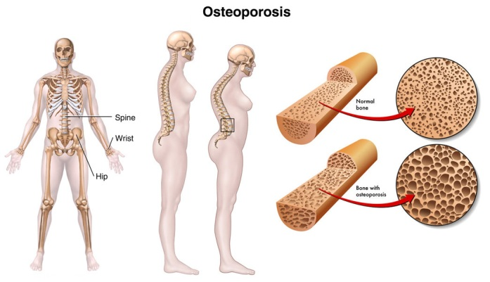 Osteoporosis_Causes