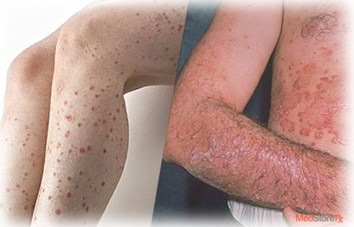 Skin Conditions Psoriasis