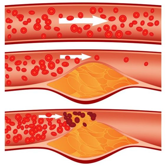 arteries contraction