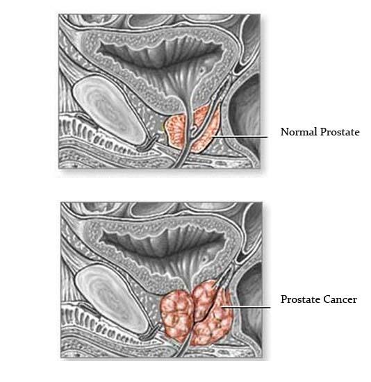 details info on Prostate cancer